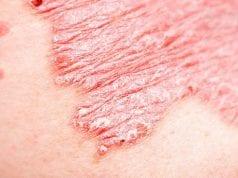 autoanoso derma