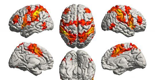 Μουσική - εγκέφαλος