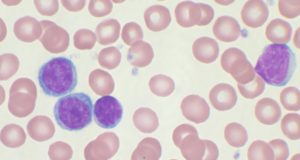 λευχαιμία, Chronic lymphocytic leukemia
