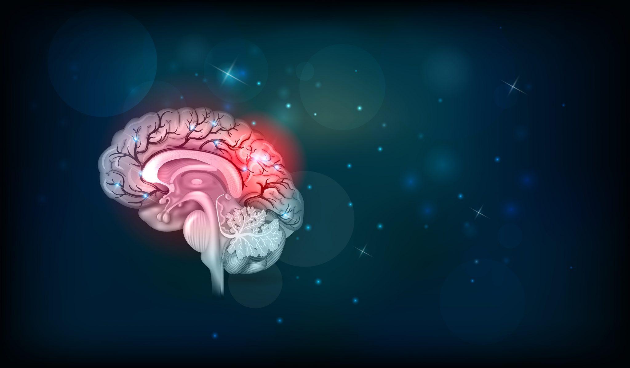 Κορονοϊός: Αυξημένος κίνδυνος θανάτου και αναπηρίας από εγκεφαλικά