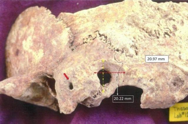 Θάσος: Εντοπίστηκε αρχαίο κρανίο με ίχνη χειρουργικής επέμβασης