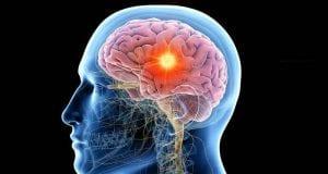 Εγκέφαλος - όγκος - Τεχνητή Νοημοσύνη