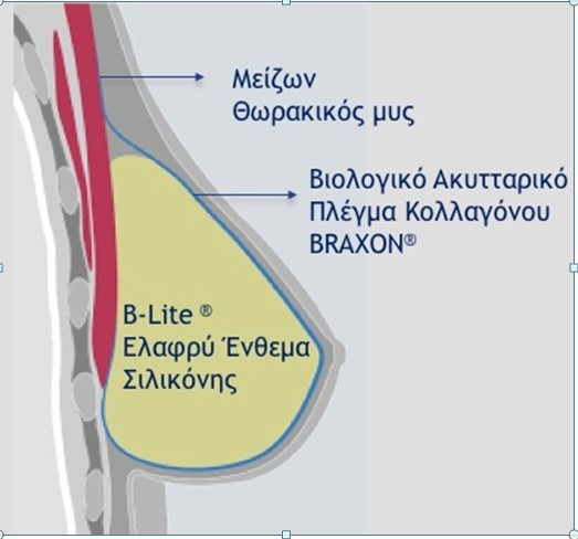 Διάγραμμα μαστού
