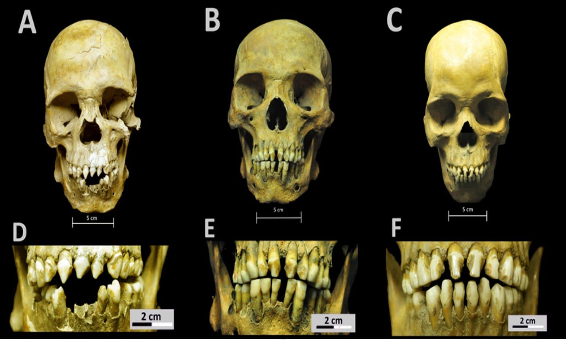Μεξικό: Τι αποκαλύπτει το DNA και τα οστά τριών ανδρών που θάφτηκαν πριν από 500 χρόνια