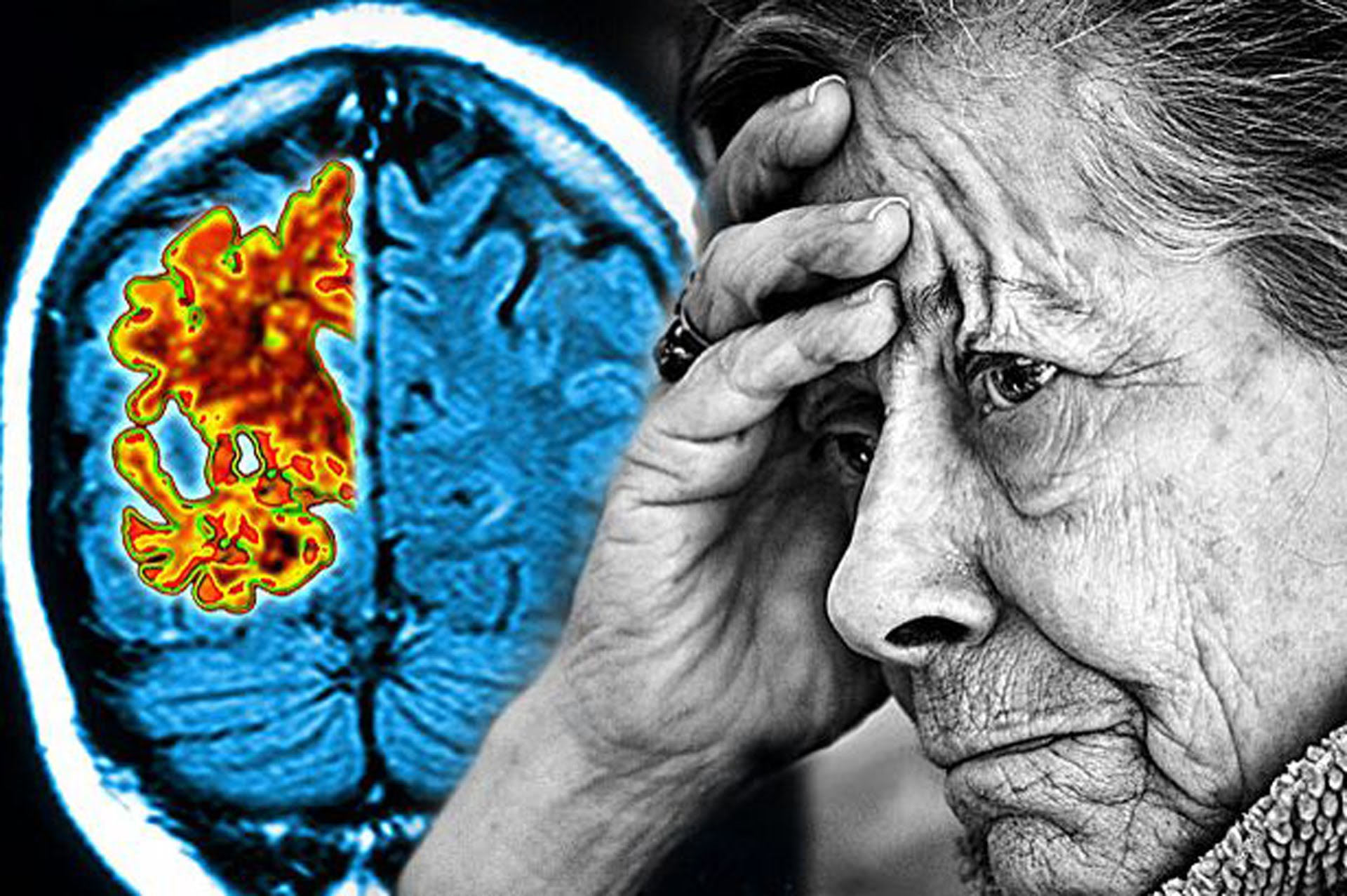 Ποια είναι τα συμπτώματα και οι ενδείξεις πριν το Αλτσχάιμερ
