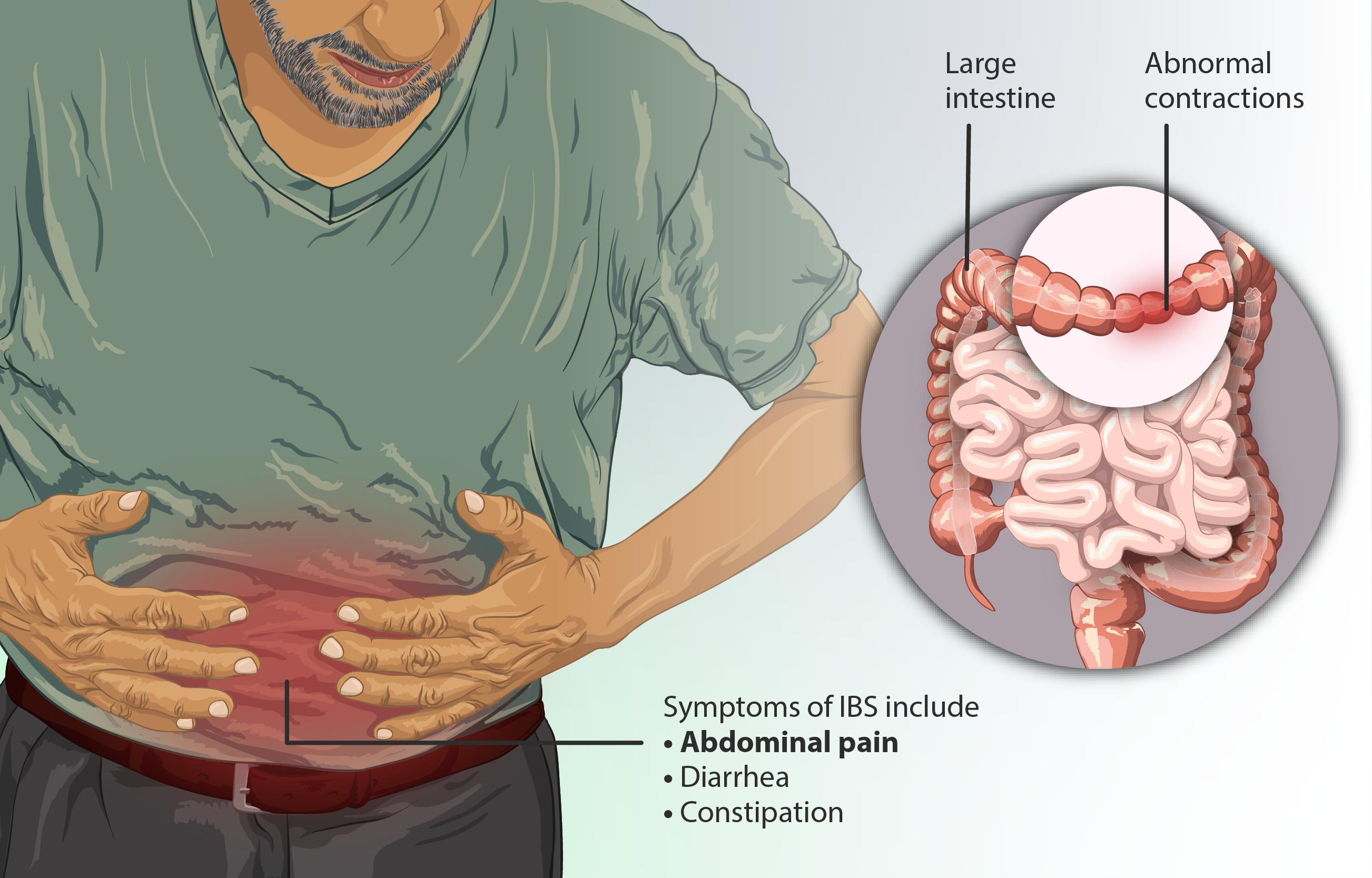 Διατροφή για σύνδρομο ευερέθιστου εντέρου (ΣΕΕ) (IBS)