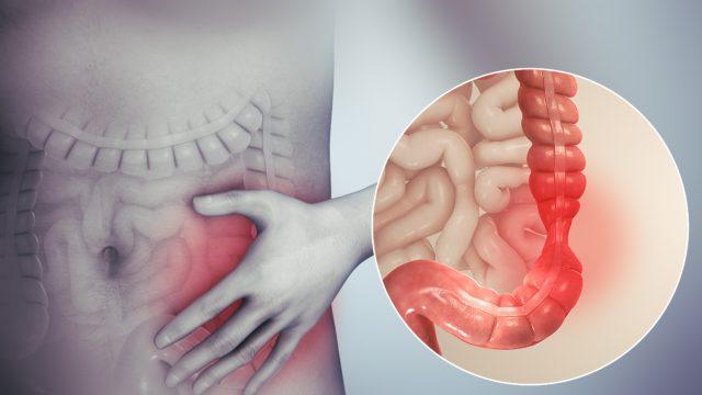 Σύνδρομο Ευερέθιστου Εντέρου (ΣΕΕ) Irritable bowel syndrome