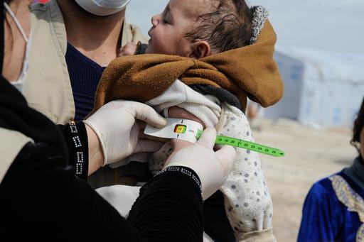 UNICEF: Έξαρση του υποσιτισμού των παιδιών λόγω COVID-19